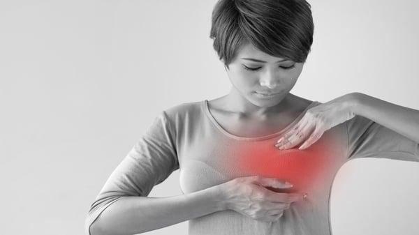 tumor-mamario-sinonimo-de-cancer