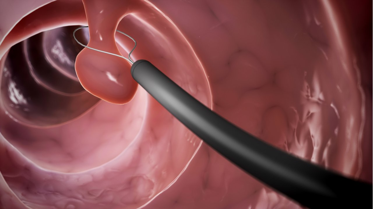 Cáncer de colon: Tipos, síntomas, factores de riesgo y prevención