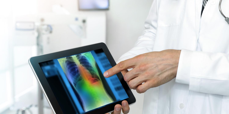 Métodos para una detección temprana del cáncer