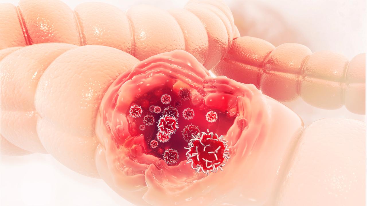 Examen Thevenon para la detección del cáncer de colon