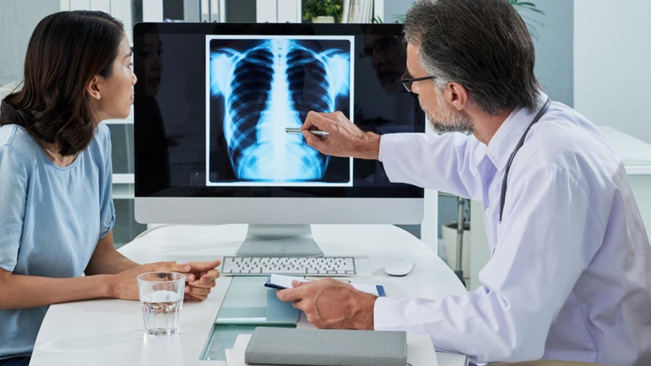 El tratamiento del cáncer pulmonar en función de las etapas de la enfermedad
