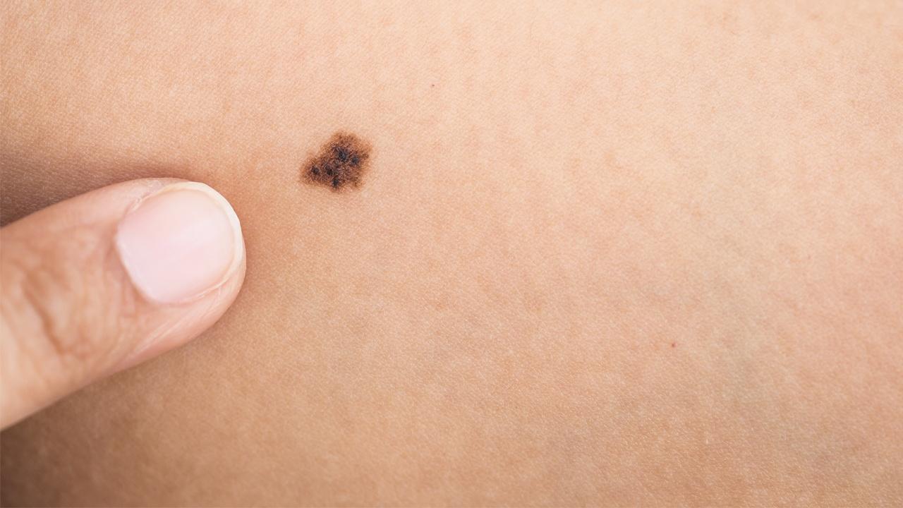 Descubre cuáles son los pasos a seguir si detectas una mancha en tu piel