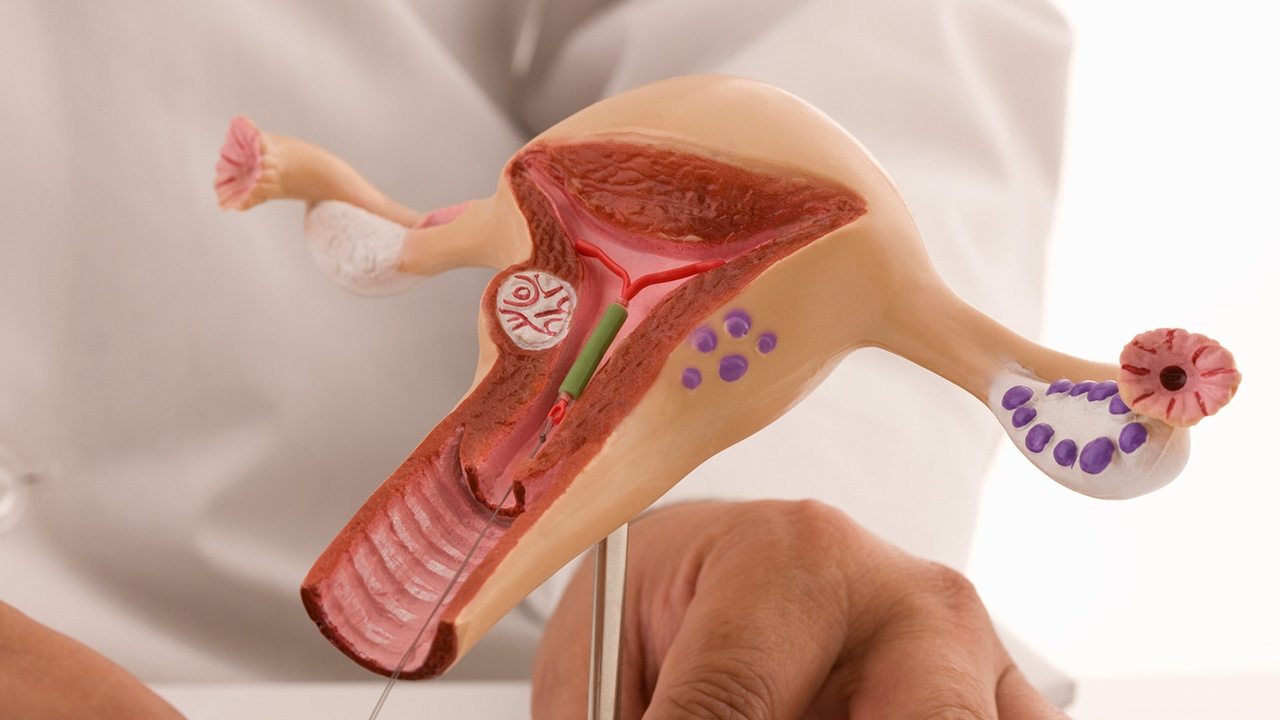Cáncer de útero: causas, síntomas, tratamiento y prevención