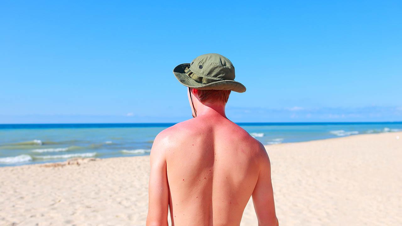 ¿Cómo los rayos UV afectan tu piel?