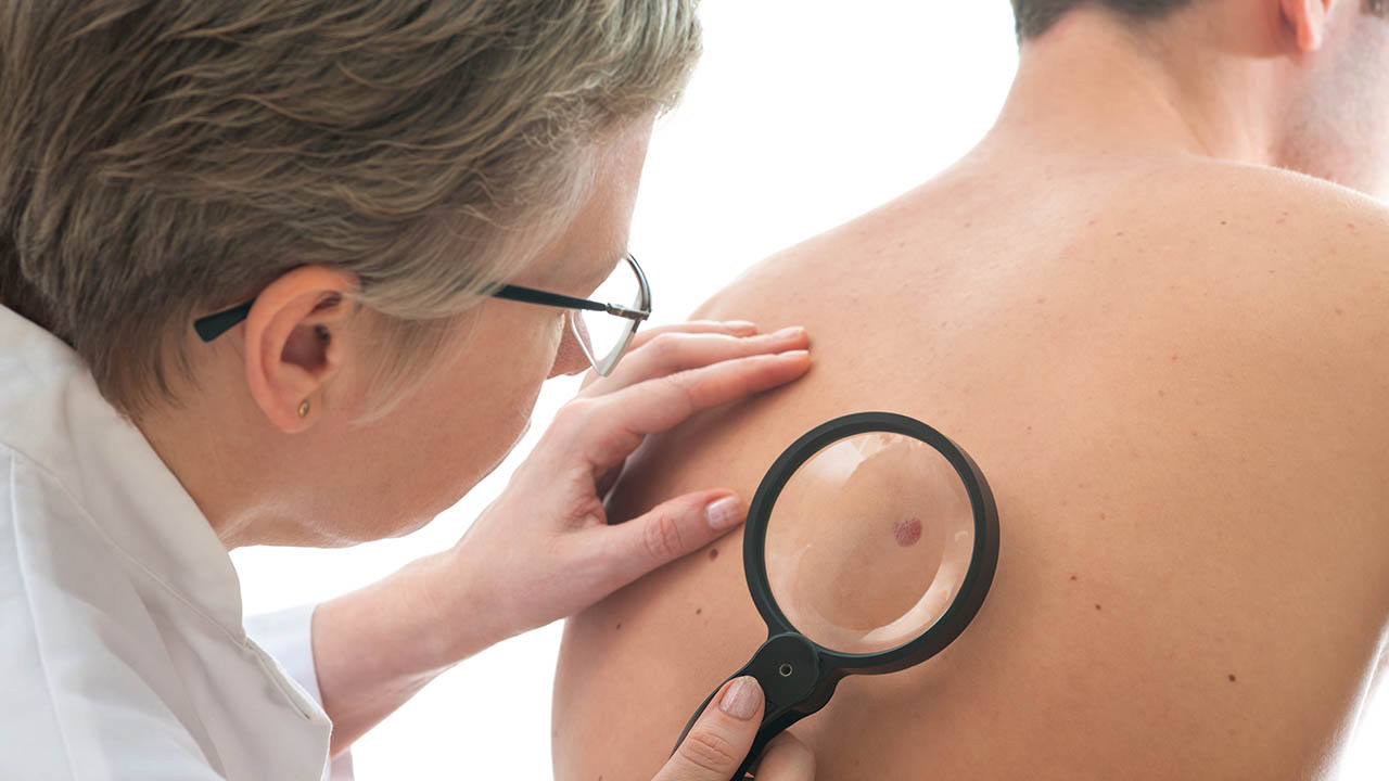 ¿Qué exámenes debes hacerte para detectar el cáncer de piel?