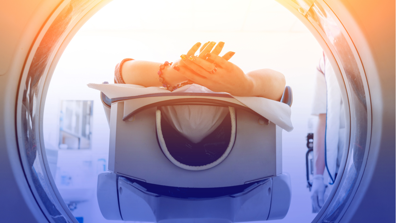 Radioncología: Las 5 fases del tratamiento contra el cáncer