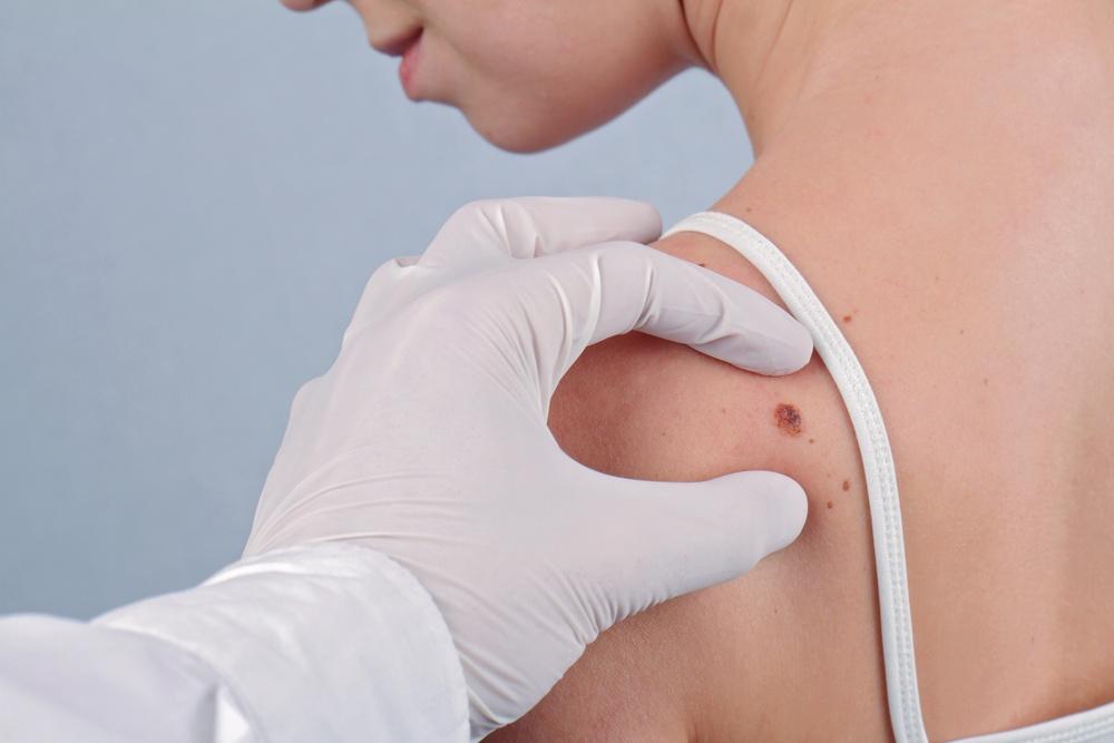 ¿Qué signos indican que podrías tener un melanoma?
