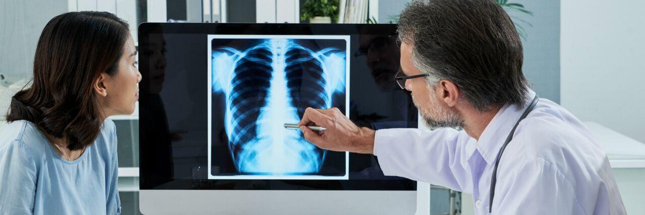 Las etapas del cáncer pulmonar definen el tipo de tratamiento del paciente