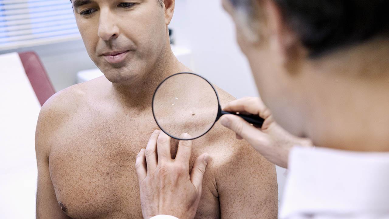 ¿Con qué tratamientos puedes combatir el cáncer de piel?